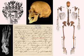 Osteobiografie a paleopatologie ostatků hraběcího rodu Swéerts-Sporck v kontextu dobových písemných pramenů